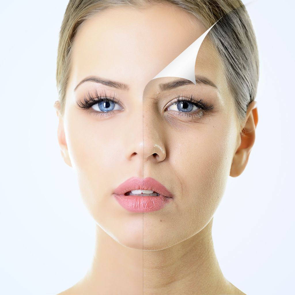 chemical-peels-treatments