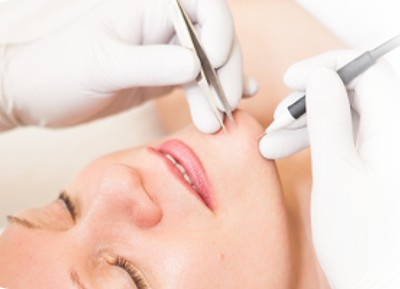 electrolysis-hair-removal