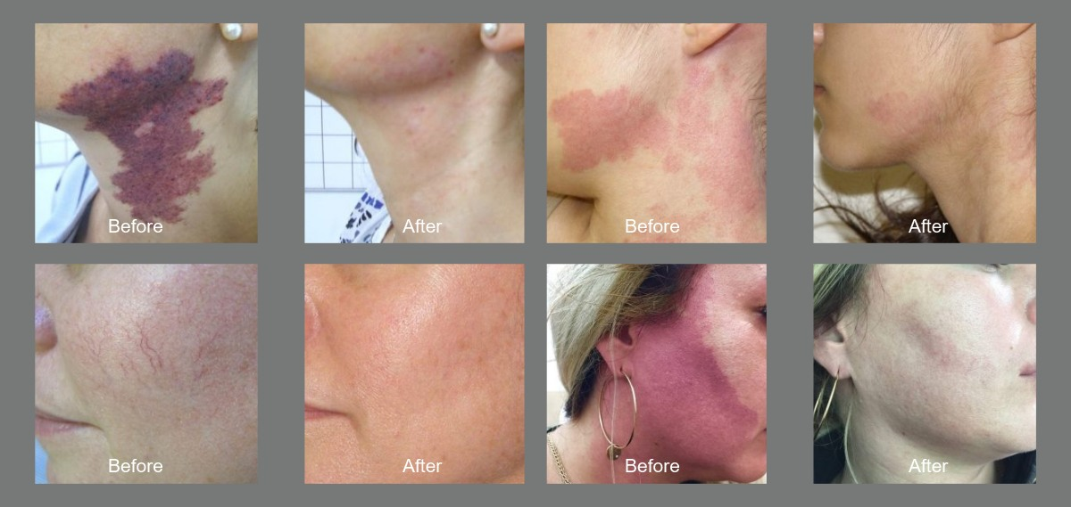 harmony xl pro treatments